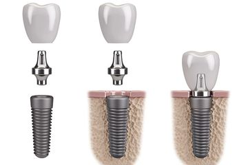 Implant - custom abutment - crown