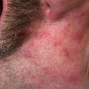 Chronic Facial Rash and Reactions to Insect Bites