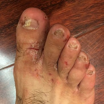 Jock itch, Fungal Toes, and Enlarged Lymph Nodes