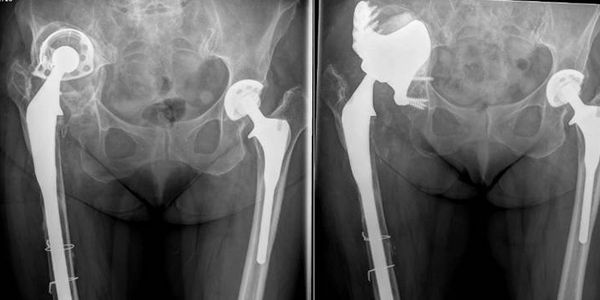 A custom-made replacement socket was used to treat the loose cup and extensive pelvic bone loss