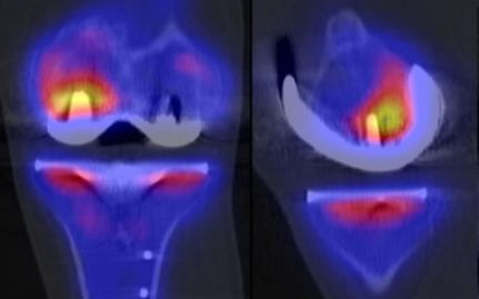 SPECT CT Scan indicating femoral component looseing