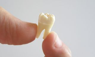 Image of an extracted tooth.