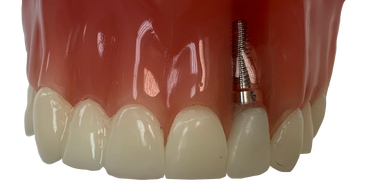 Dental Implant, Crown