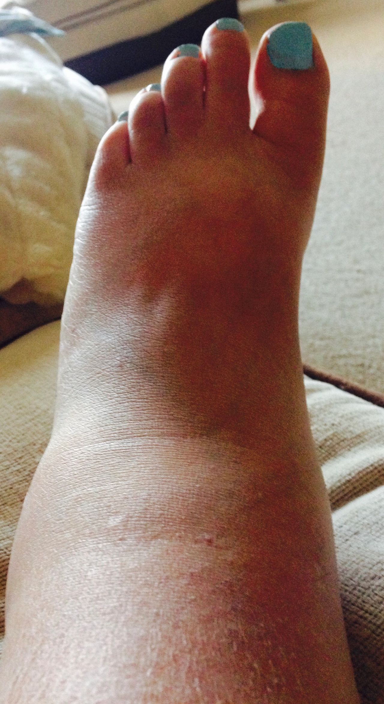 Suffering from Swollen Feet and Ankles in the hot weather?