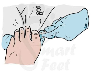 Smart-Feet Foot Care cutting toe nails, #northsomerset #smartfeetfootcar #advennturedesign