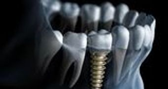 cheap implant, inexpensive implant, cheap implant in brooklyn, cheap implant in crown heights