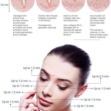 Microneedling is  an amazing way to rid yourself of those fine lines,  scars & overall appearance