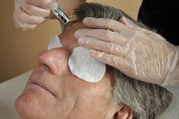 Microdermabrasion , Men and woman skincare