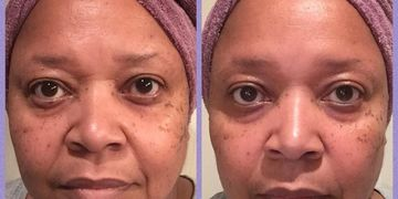 25 days = Firmer skin, Diminished lines / wrinkles - forehead, eyes & brows, Plumped facial lines