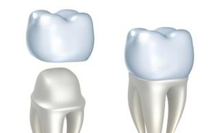 Used to strengthen teeth that have become worn or compromised