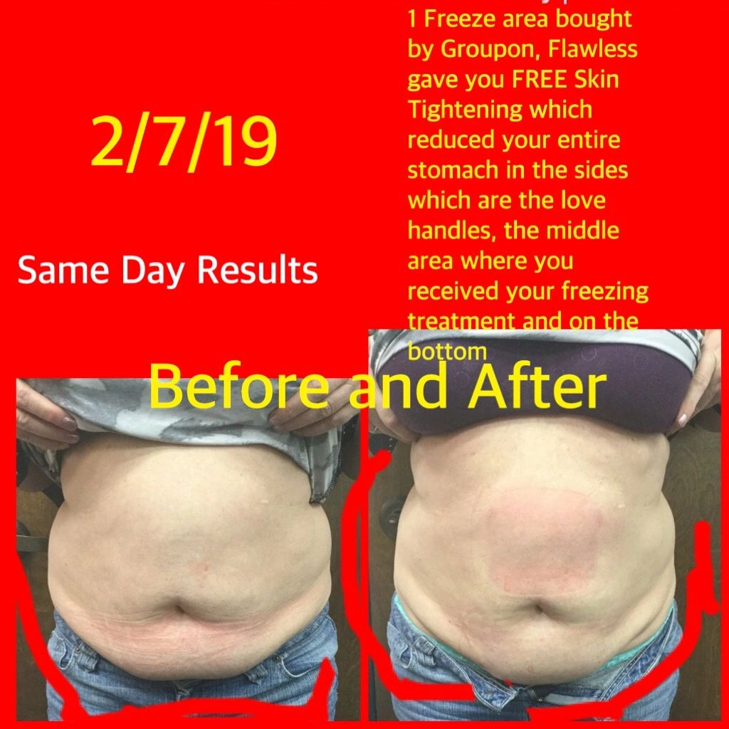 Cary NC Sandra Huesing Results Awesome Distortion vs Facts
