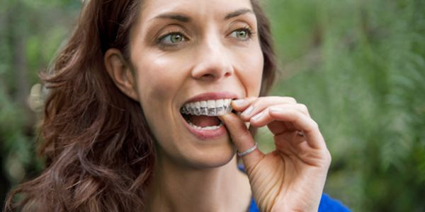 Invisalign method uses invisible braces and helps in straightening teeth in 3 months.