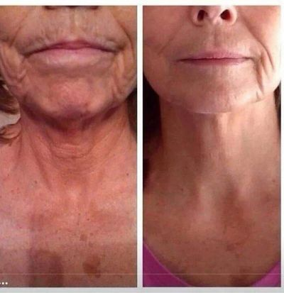 1 Session of Procell Microchannelling Therapy  Before and After