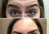 Botox Cosmetic injected into forehead