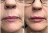 Injected Juvederm to plump her pout and smooth lines around the lips