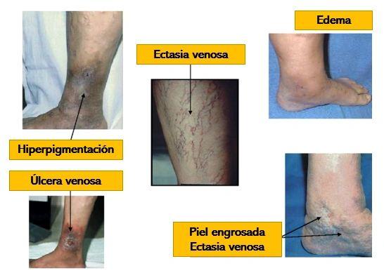 La tratamiento venosa crónica úlcera de