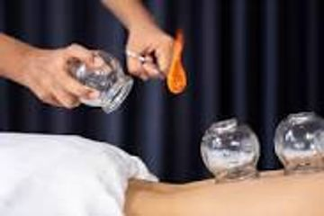 fire cupping sports medicine