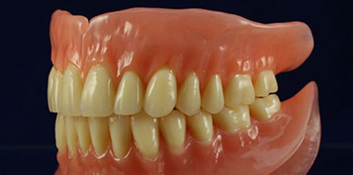 BPS DENTURES @ KINGS DENTAL CARE , chennai-73
