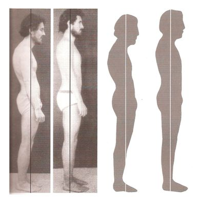 Before and after a 10-Session Rolfing Series