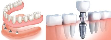 Implants and Implant Dentures