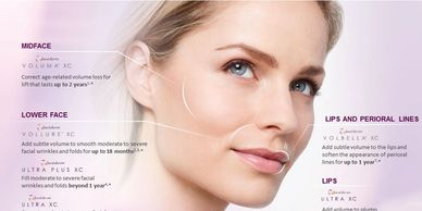 Juvederm Collection of fillers. Lip Plumping. Facial Volume