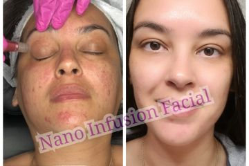 Nano infusion facial treatments use a automated handheld device with nano needles that exfoliate the