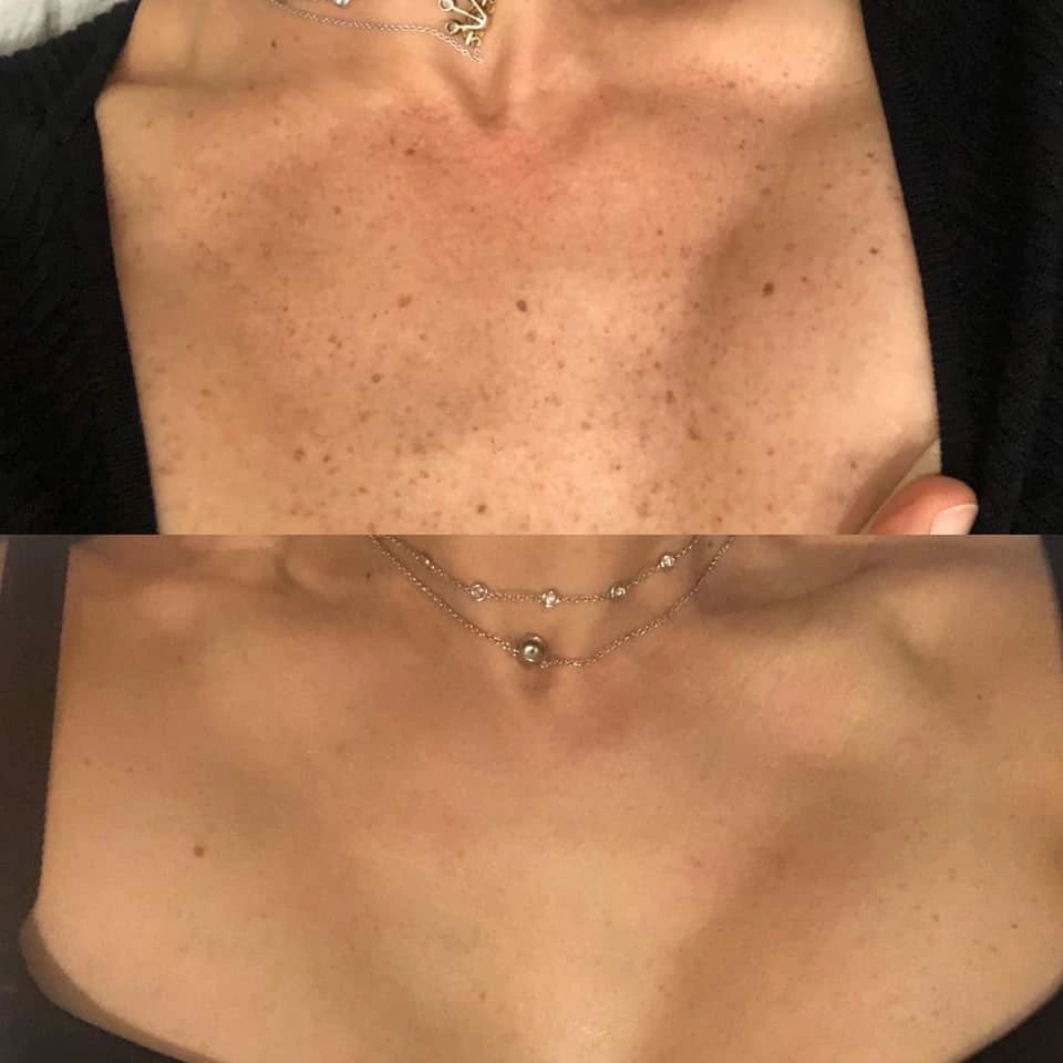 Dr. Katherine Coley was treated with Lumecca, IPL, in December 2019. The results are amazing!