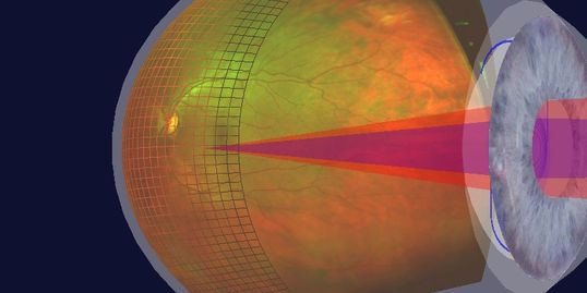 Optomap 3D Screening Photos is part of your eye exam