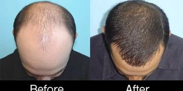 prevent balding at novagenix.org with prp therapy in Jupiter Florida Hair Loss treatments Palm Beach
