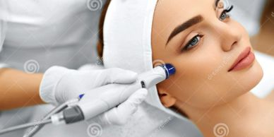 MICRO NEEDLING IN YORKVILLE PETALS YORKVILLE BEAUTY BROW AND LASH BAR