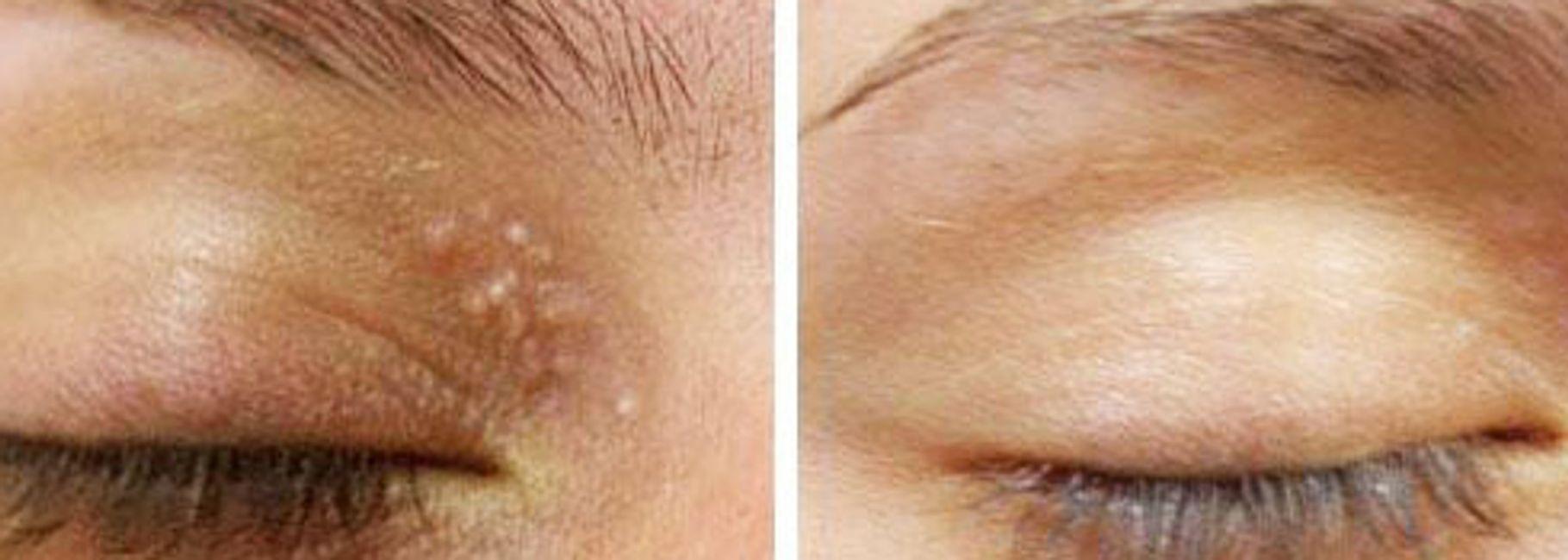Milia Skin Tag Removal Petals Yorkville Beauty Brow Lash Bar
