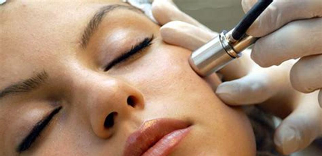 Microdermabrasion in Yorkville Petals Yorkville Beauty Brow & Lash Bar