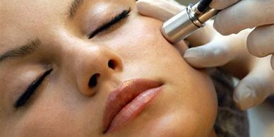 MICRODERMABRASION IN YORKVILLE PETALS YORKVILLE BEAUTY BROW AND LASH BAR