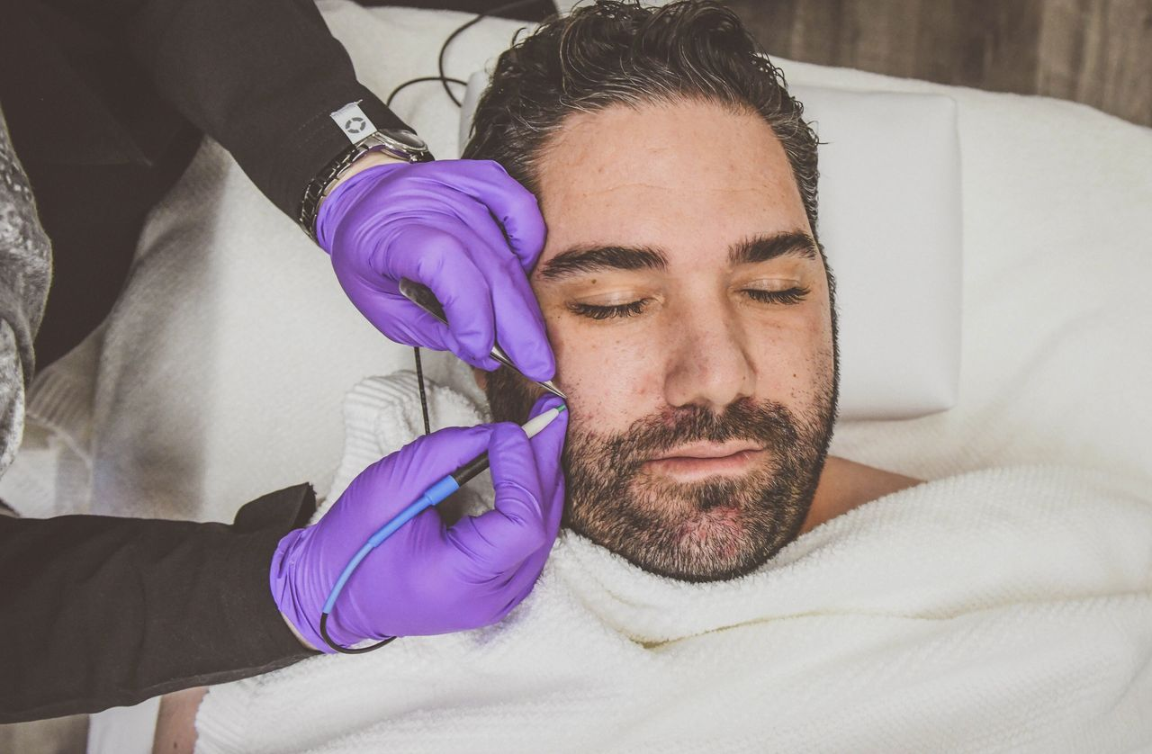 Are There Any Side Effects From Electrolysis Treatments?