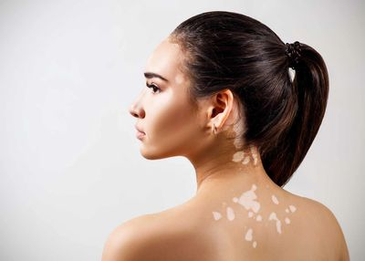 Vitiligo can change the color of your skin or hair, causing discolored spots.