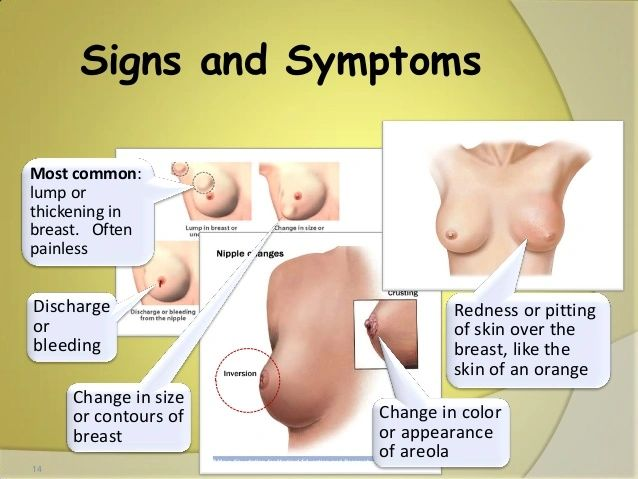 Breast Cancer Symptoms Victorious Images