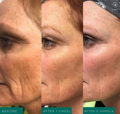 VI Peels chemical peel in Newark, DE
