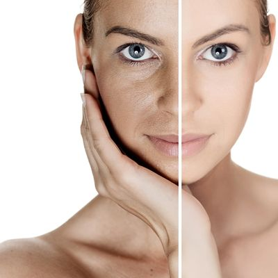 Chemical peels in Wilmington, Delaware