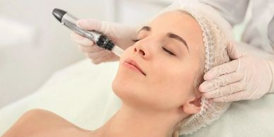 microneedling in wilmington, DE