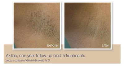 Medspa in spring, tx; laser hair removal in spring, tx; botox in spring, tx; laser hair removal in the woddlands, tx