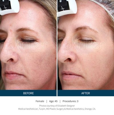 vampire facial near me, micro needling in spring, tx; microneedling in the woodlands tx; how to get rid of fine lines near me, how to get rid of fine lines in spring tx; vampire facial in spring tx; vampire facial in the woodlands; prp near me