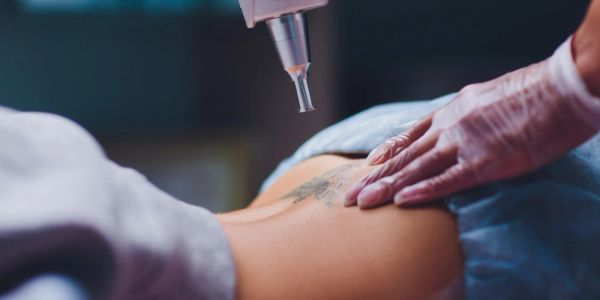 Woman removing an old tattoo on her lower back