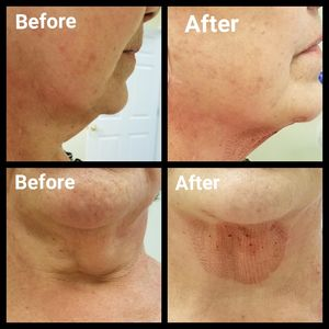 Plasma Fibroblast, non surgical eye lifting, neck lifting, tummy skin tightening, wrinkles, and more