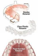 retainers given after orthodontic treatment. Orthodontic treatment is needs retention for stability