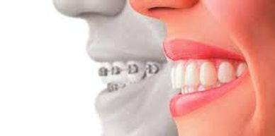 Extractions during orthodontic treatment doesn't cause damage.