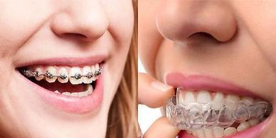 metal braces Versus aligner or invisible braces for orthodontic treatment. Braces or no braces