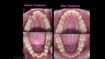 Orthodontic treatment with premolar extractions for stable post orthodontic treatment results