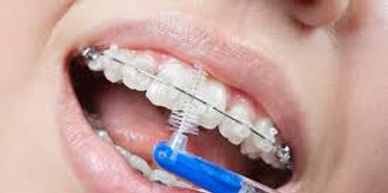 Interdental brushing is a must during orthodontic treatment to avoid cavities