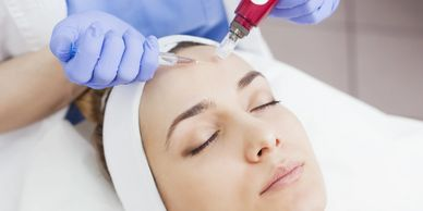 the best place for microneedling little rock, special offers microneedling near me, microneedling AR