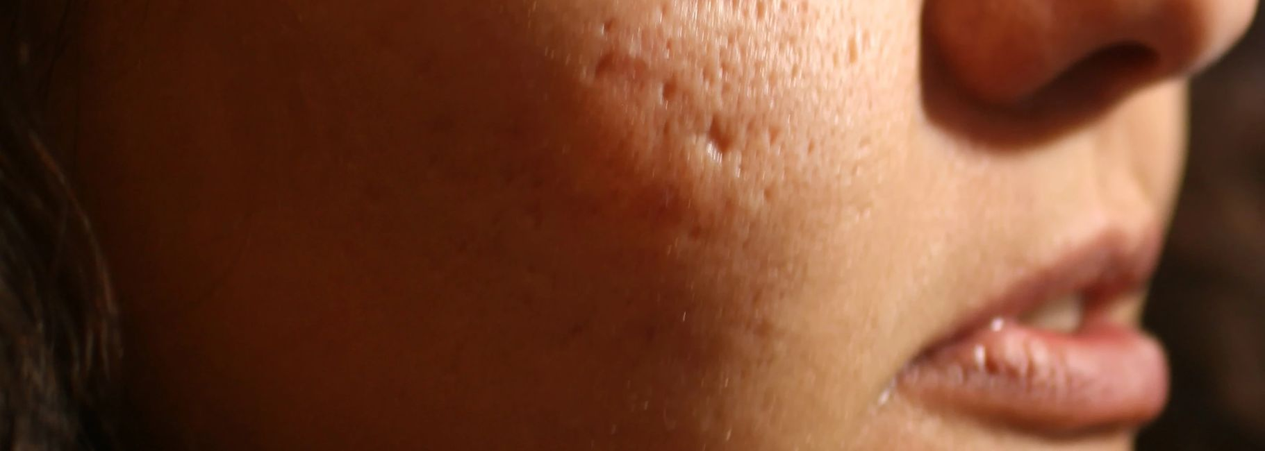 PRP treatment for acne scars little rock, PRP for acne surgical scars near me, PRP injection scar